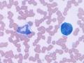 Toxic neutrophil & reactive lymphocyte
