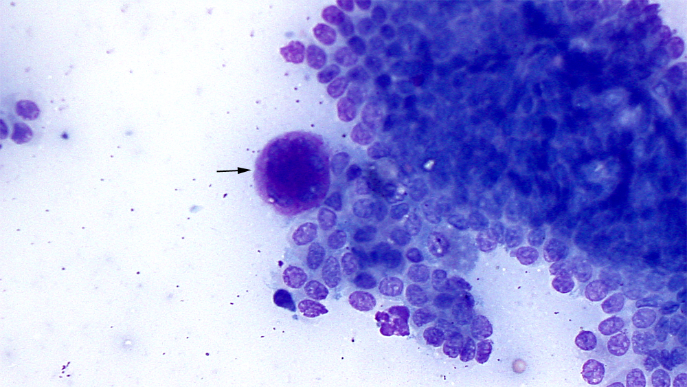 causes anal What carcinoma canine sac