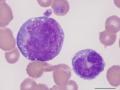 Promonocyte