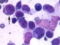 Mast cell tumor (DQ)