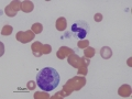 Canine toxic band & monocyte