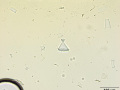 Struvite (pyramidal)
