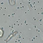 Fat droplets