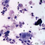 Figure 1: Cytospin smear from urine sediment  (Wright's stain)