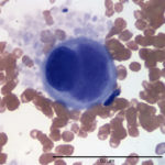 Figure 2. Large cell in the peripheral blood. (Wright's stain, 100x)