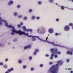 Figure 3. Tracheal wash direct smear (Wright's stain 500x)