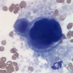 Figure 3. Large cell on a peripheral blood smear. (Wright's stain, 100x)