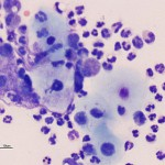 Figure 2: High power peritoneal fluid smear (Wright's stain)