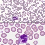 Example of an area of the blood smear where a monolayer is formed.
