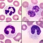 Normal neutrophils and neutrophils with toxic change
