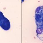 Mesos vs carcinoma