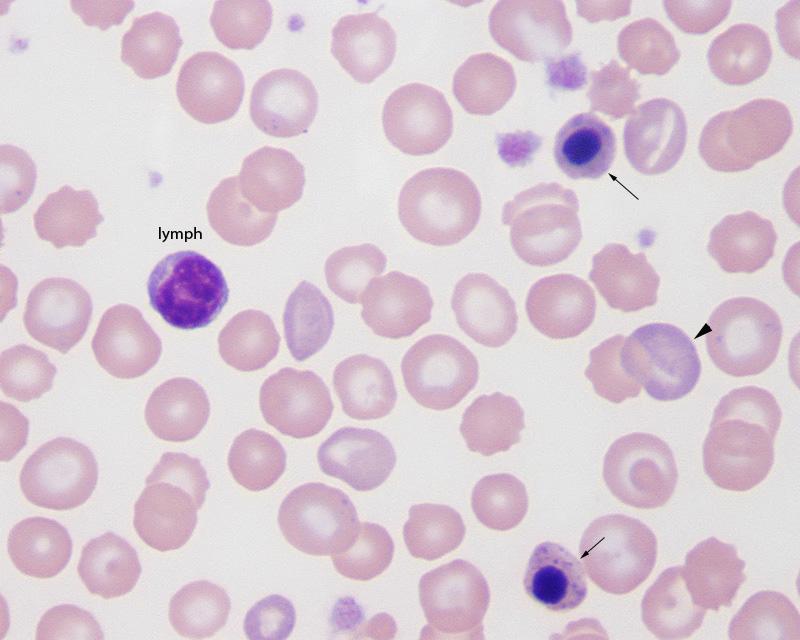 nRBC lymph