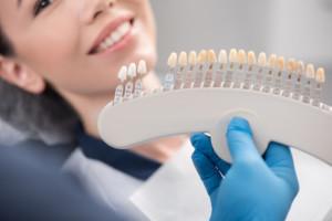 dental veneers newark nj