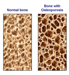bones with osteoporosis