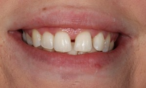 Dental Bonding   Bonding Procedure   Brooklyn