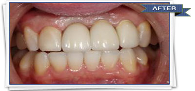 Dental Implants | Bonding Procedure | Brooklyn