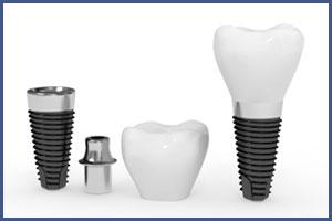 Dental Implants | Dental Bridges | Dentures | Brooklyn