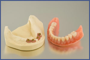 Dentures | Full | Removable | Partial | Brooklyn