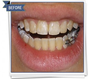 Teeth Whitening | Teeth Discoloration Treatment | At Home Whitening Trays | Brooklyn
