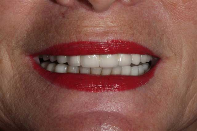 Dental Implants | Before and After Photos | Brooklyn