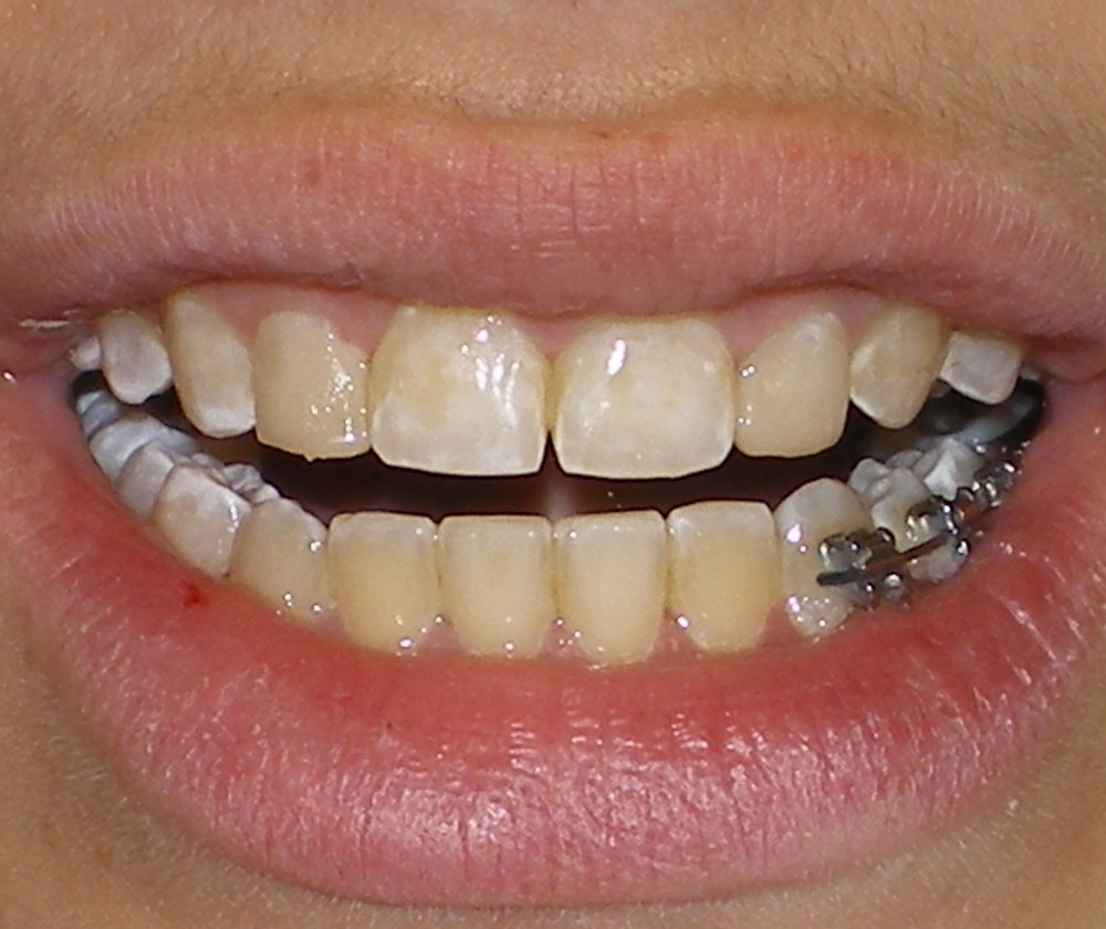 Teeth Whitening | Before and After Photos | Brooklyn