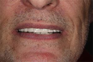 Cosmetic Dentist   Smile Makeover   Dental Implants   Brooklyn   New York City
