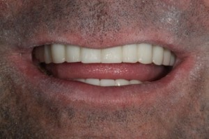 Replacing Missing Teeth with Implants