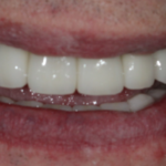 Dental Implants Case 3 After