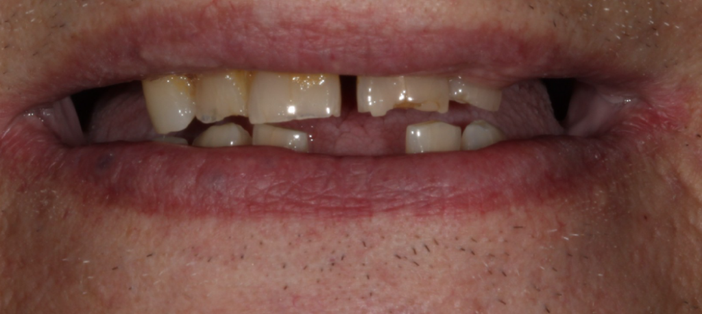 Dental Implants Case 3 Before