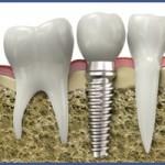 Dental Implants | Dental Bridges | Dentures | Brooklyn | New York