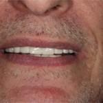 Cosmetic Dentist | Smile Makeover | Dental Implants | Brooklyn | New York City