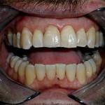 Easy Smile Makover | Cosmetic Dental Restorations | Brooklyn | New York City (NYC)