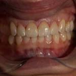 Invisalign | Orthodontic Treatment | Smile Makeover | Brooklyn NY | New York City (NYC)