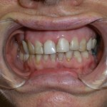 How to get a Great Smile | Smile Makeover | Brooklyn