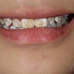 Brooklyn Smile Makeovers