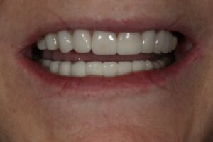 Porcelain veneers on upper arch and 8 implants on lower arch